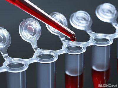 Холестериновые бляшки методы удаления существуют или нет