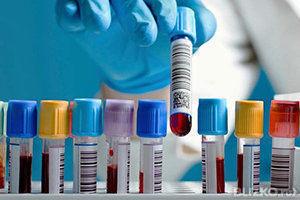 Что такое bi в анализе крови анализ крови формула расшифровка детей