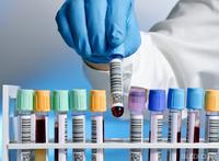 Где можно сделать подробный анализ крови в воронеже Медицинская справка для работы с гостайной Улица Юлиуса Фучика